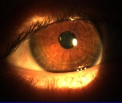 eye_0